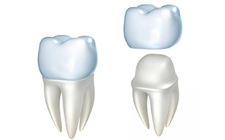 http://delmonddentistry.com/wp-content/uploads/2015/11/crowns-320x200.jpg