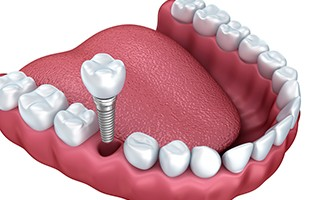 http://delmonddentistry.com/wp-content/uploads/2015/11/implants-320x200.jpg